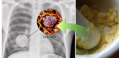 This magic herb found in your kitchen is now scientifically proven to reduce the risk of lung cancer