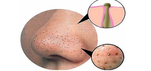 Use these methods to remove blackheads and get glowing skin at home
