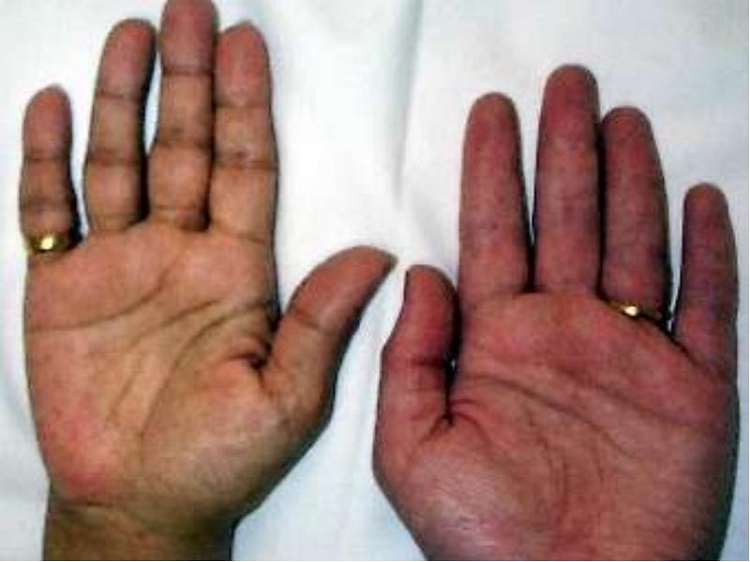 What causes Addison's disease?