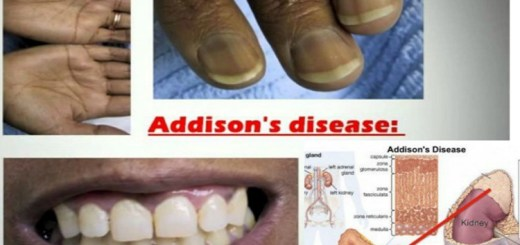 What is Addison's Disease? All the information you need about it!