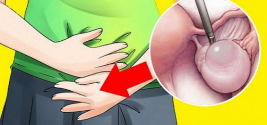 6 Warning signs of ovarian cyst that no woman should ignore