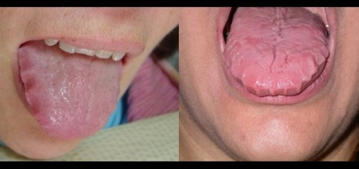 Beware if you see these wavy patterns on your tongue, you might wake up in ER