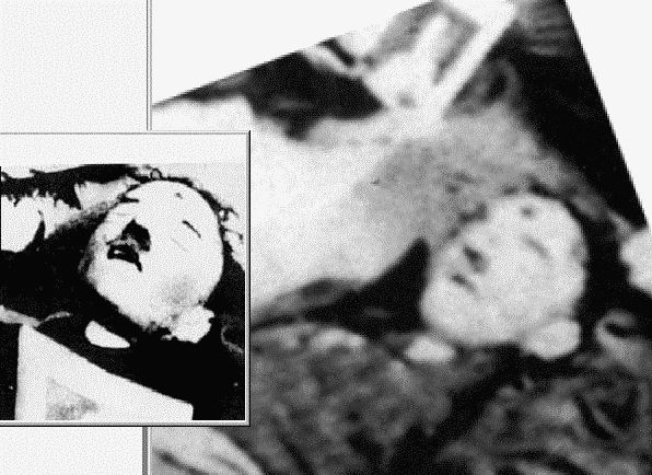 Did Hitler Really Die In the Bunker or Didn't He? Bodyguard Provides Ultimate Proof