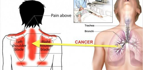 If you are having pain in shoulder blades, then it can be something more serious like cancer