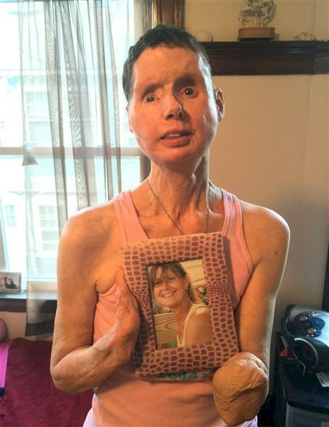How she looks after the face transplant surgery