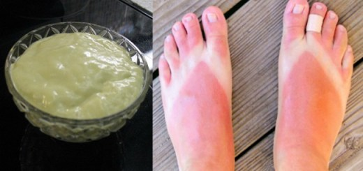 The best way to take care of sunburnt skin with a secret recipe