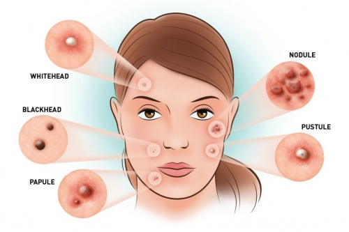 What causes your acne to reappear at the same spot?
