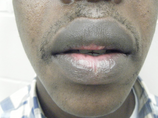 smoking effects on lips