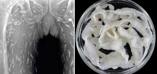 Chinese man gets massive Tapeworm infection after eating this highly popular food