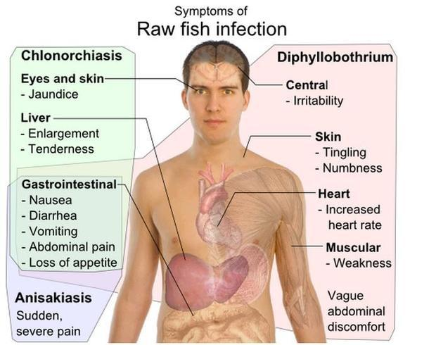 Raw fish infection