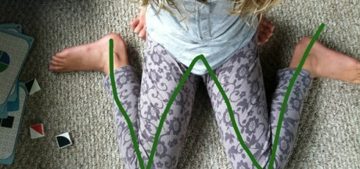 """The dangers of children sitting in a """"W"""" position and the reasons why they shouldn't"""