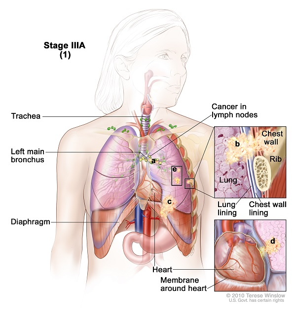 Warning symptoms of Lung cancer