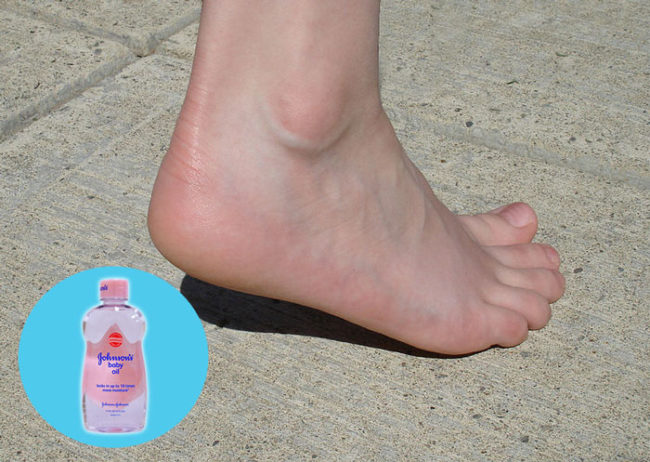 Cure Cracked Heels