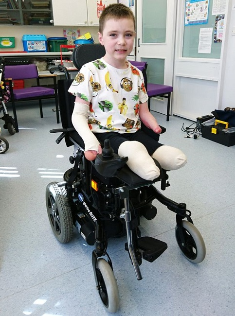 Baby fitted with new prosthetic legs