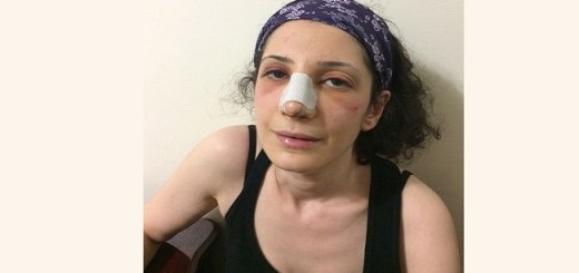 This teachers botched Nose Surgery is almost costing her life