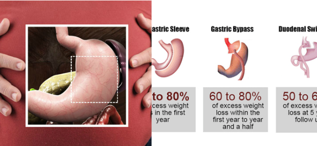 what is the best weight loss surgery