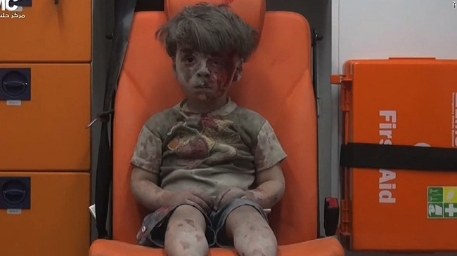 Dazed Syrian Boy after being pulled out of rubble