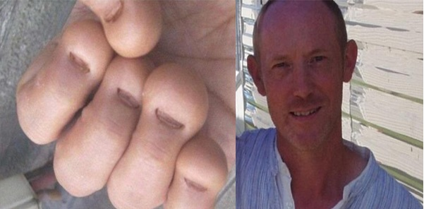 This guy suffered from nail biting and doctors found out something very bad on inspection