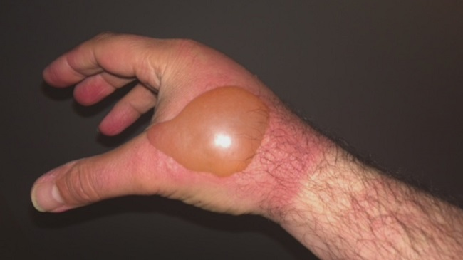 Strange red patches on his hand