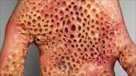 people suffer from tryptophobia