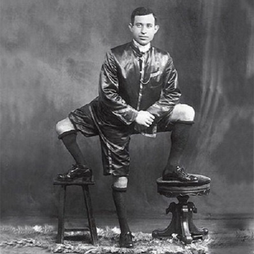 George Lippert born in Germany with two hearts and three legs