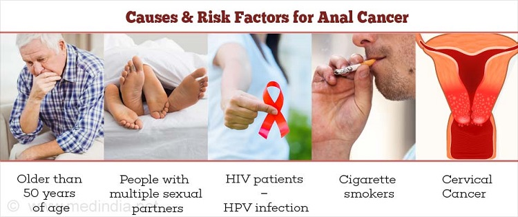 The risk factors of anal cancer