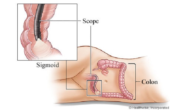Sigmoidoscopy is easier