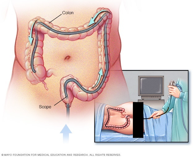doctor recommends a colonoscopy