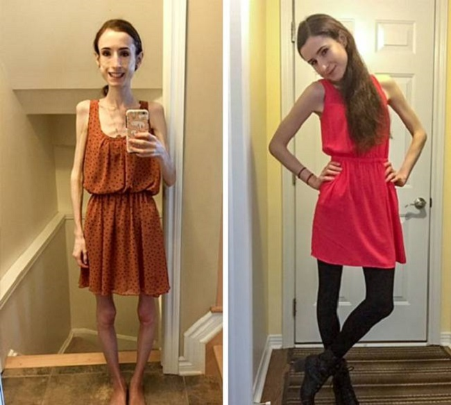 girl recovered anorexia and starvation