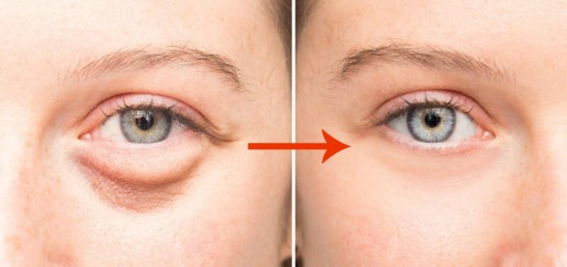A Natural Evening Baggy Eyes Solution to Remove the Puffiness Fast and Rejuvenate Your Eyes