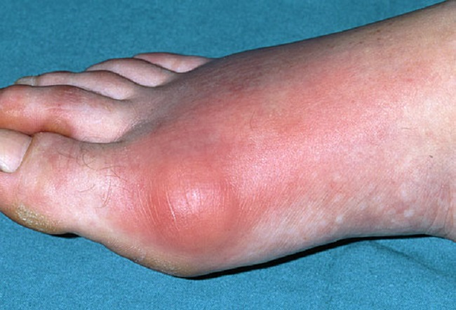 Inflamed gout toe