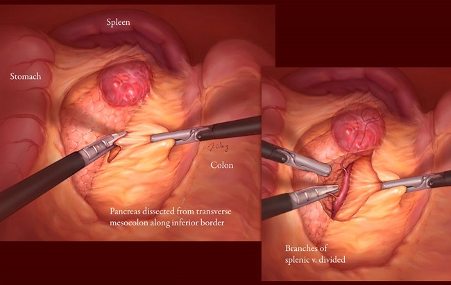 Removing a tumor spreads cancer