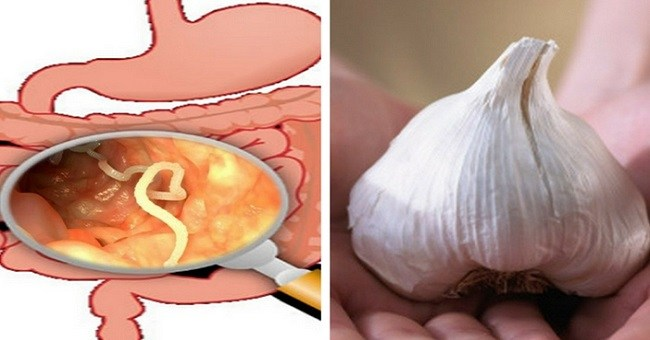 15 Foods That Eliminate Intestinal Worms Naturally