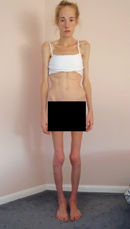 Anorexia is a dangerous condition