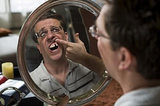 Ed Helms actually has no tooth there!