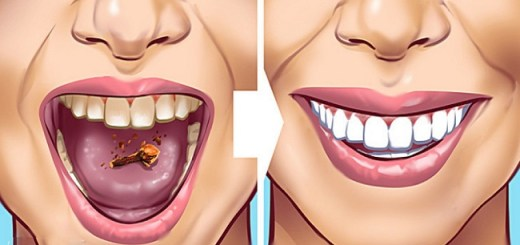 10 Effective Ways to Get Rid Of Ugly Tartar Stains From Your Teeth