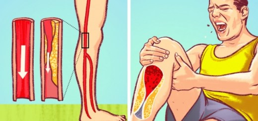 8 Eye Opening Signs Of Blocked Arteries That We All Should Never Ignore