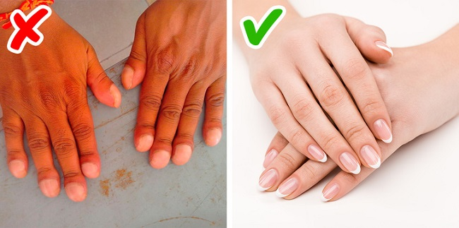 Changes in your nails