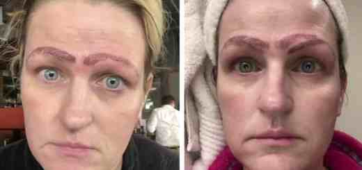 Single Mother Is Left With Four Eyebrows After Botched Microblading Treatment