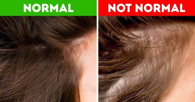 12 Things Your Hair Can Reveal About Your Health