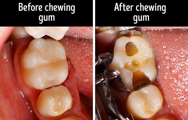 Chewing bubble gum too often