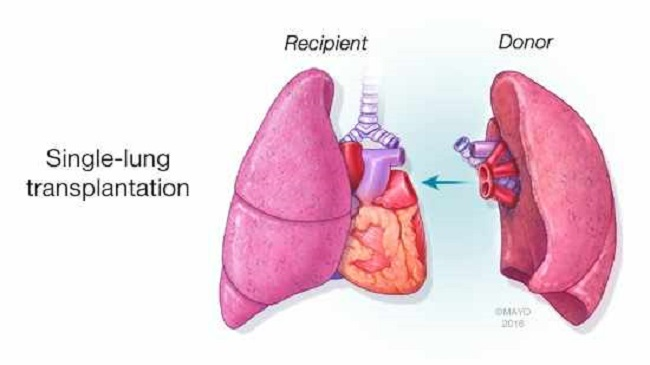 Single Lung Transplant