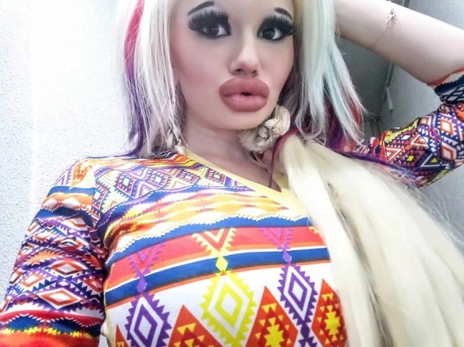 Woman with biggest lips in the world