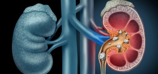 The Best Natural Remedies for Managing Kidney Stones