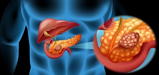 The Major Warning Signs of Pancreatitis and When You Should Consult A Doctor