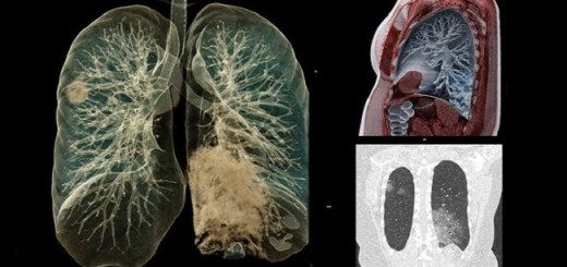 Now Autopsies Show COVID-19 Turns Lungs As Hard As Stone