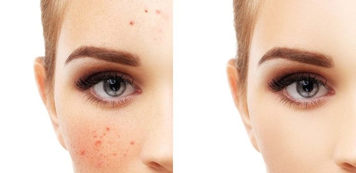 10 effective natural remedies to treat facial pigmentation