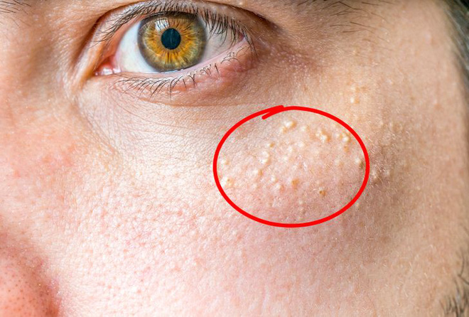 Little bumps appear on your face