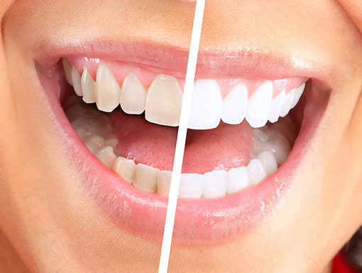 Quick tips to prevent teeth-staining