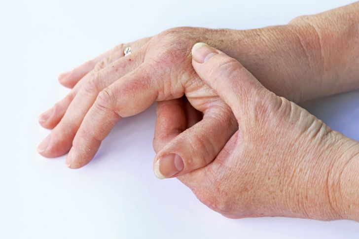 Sensitive and thickened fingers